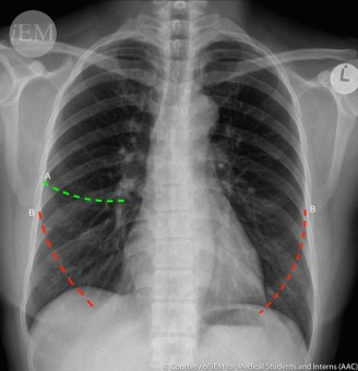 337.5 - normal PA chest x-ray FISSURES 1 Minor (A) and Major (B)