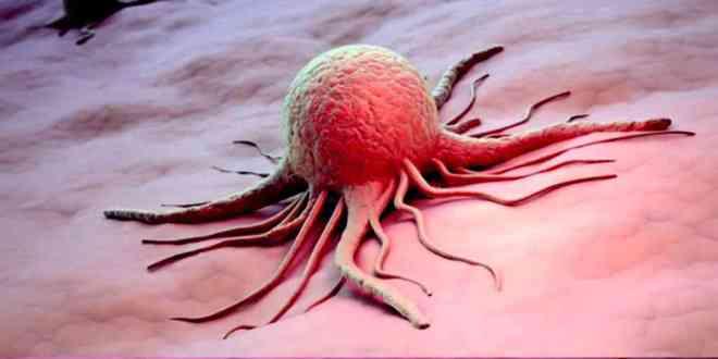 cellule-cancéreuse-traitement