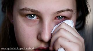 Obat Mata Bengkak dan Berair di Apotik