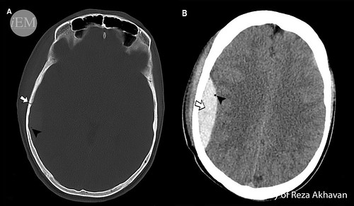 627.28 - Figure 28 - epidural and pneumocephalus
