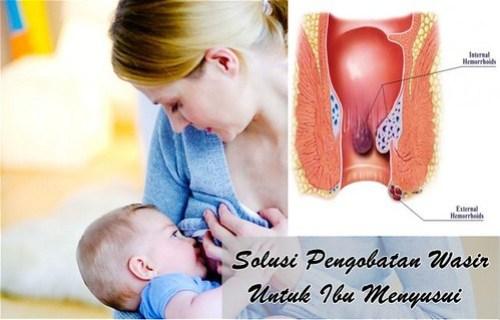 Merk Obat Wasir Di Apotik Untuk Ibu Menyusui