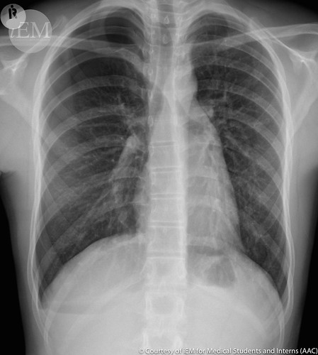 380 - pneumothorax