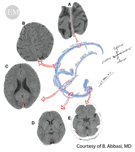 627.23 - Figure 23 - A schematic view of main dural veins and their correspondence on axial brain CT scans