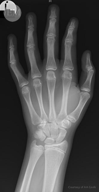 46.1 - 3rd metacarpal fracture 1