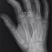 709 - Proximal phalanx fracture - Salter Harris II