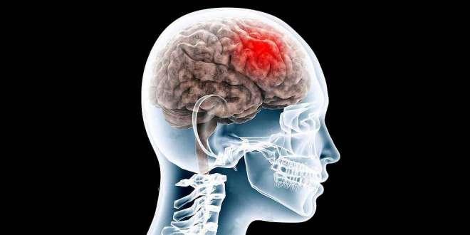 la-réalité-virtuelle-et-les-scanneurs-pour-mieux-identifier-les-commotions-cérébrales