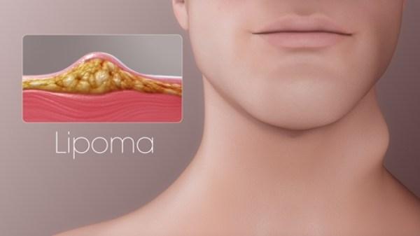 Kumpulan Obat Tradisional Lipoma