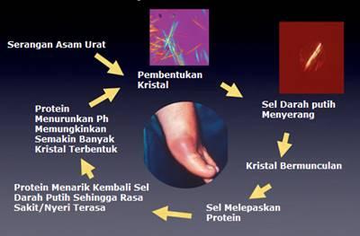 Fase Dan Tahapan Gejala Serangan Penyakit Asam Urat