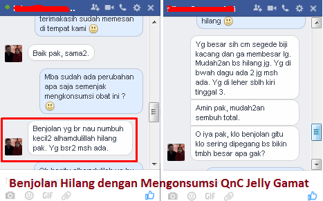 Testimoni / Kesaksian dari Obar Herbal QnC Jelly Gamat