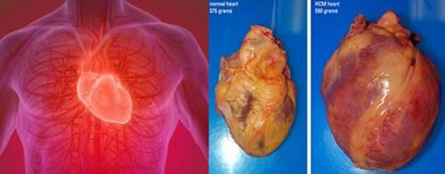 jantung bengkak kardiomegali