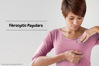 Penyakit Fibrocystic Payudara