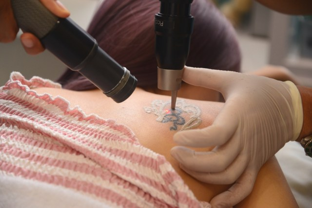 Tattoo Removal with PicoSure Laser (Part 1) – Consultation ...