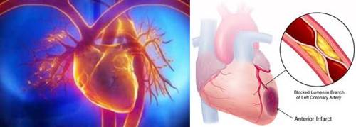 gumpalan darah pada penderita jantung bengkak