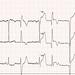 737 - chest pain