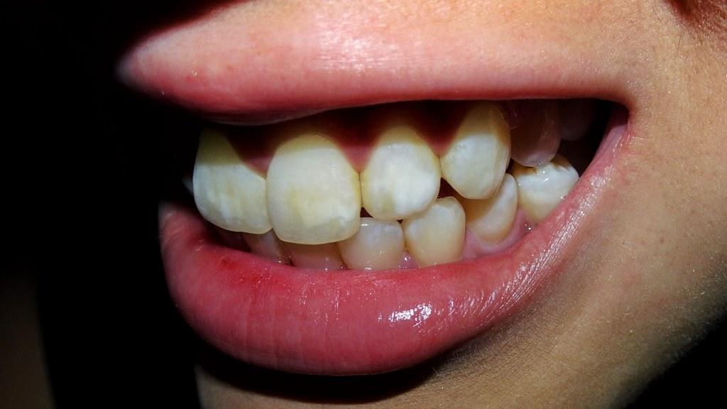 Teeth fairy