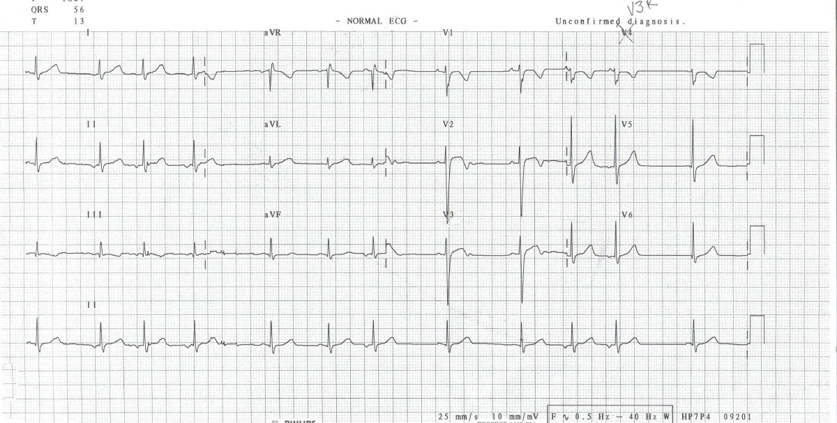 Aquila's Blog: heart block ecg
