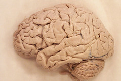 Human brain, lateral view