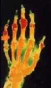 Radiografia Mão