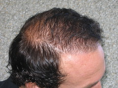 good results from synthetic hair transplant hairstyle gallery