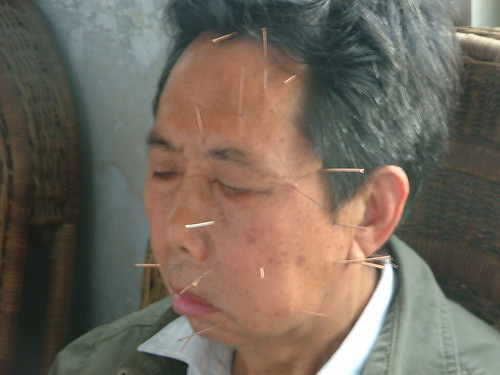 Acupuncture in China (6/6)