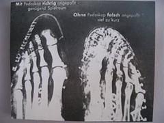 x-ray foot image