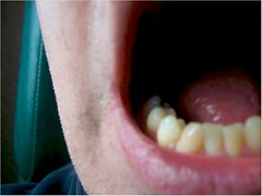 Open Mouth Broken Tooth