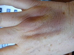 My bruised hand