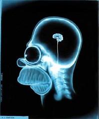 CranioHomer