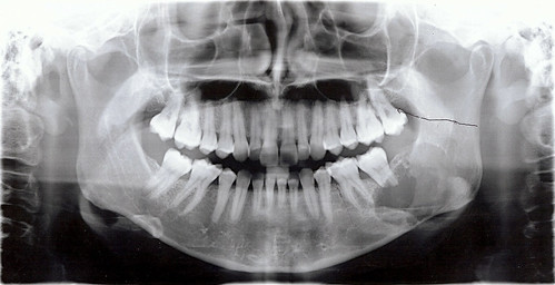 Dental x-ray - 9 May 2011