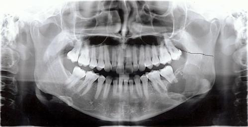 Dental x-ray - 9 May 2011