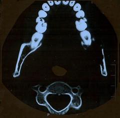 CT scan - horizontal slice - 9 May 2011