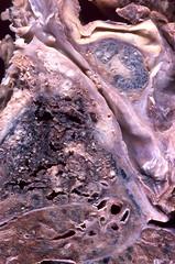 Small cell carcinoma obstructing superior vena...
