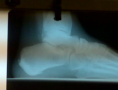 My 2 heel spurs