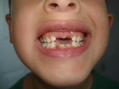 Sai's toothless smile