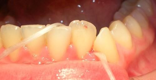 Cinta dental dientes inferiores