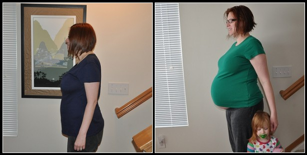 3 weeks post Partum vs. 38 weeks