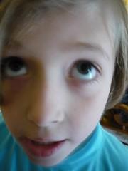 Essie, age 10