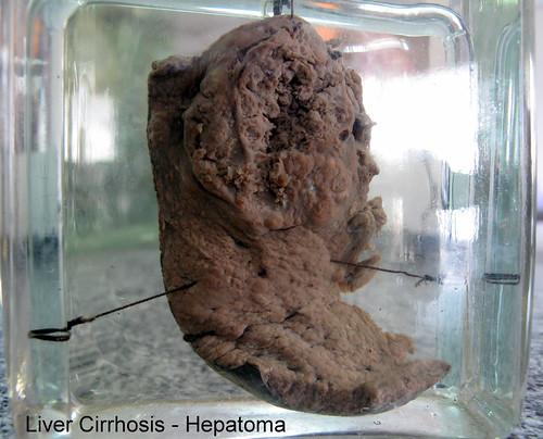 Liver Cirrhosis - Hepatoma d17