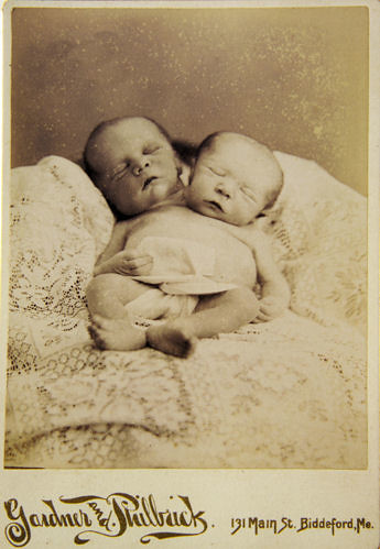 Parapagus Twins  Cabinet card ca 18851890  jack_mord