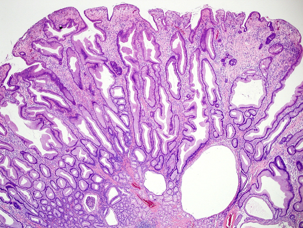 Qiao S Pathology Hyperplastic Polyp Of Stomach