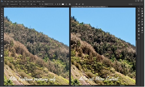 Comparison of before and after adding Micro Contrast technique to image