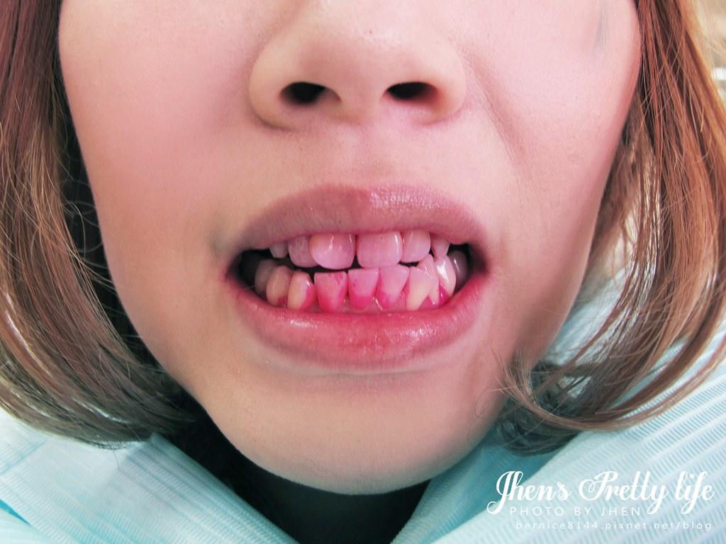 【牙套·種類】牙套種類 – TouPeenSeen部落格