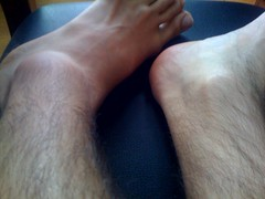 My twisted ankle by martineno