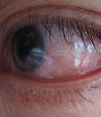 My poor left eye