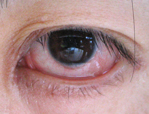plica semilunaris swollen eye allergies - HD 1024×787