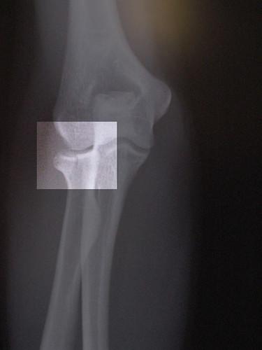 My Latest Elbow X-Ray.