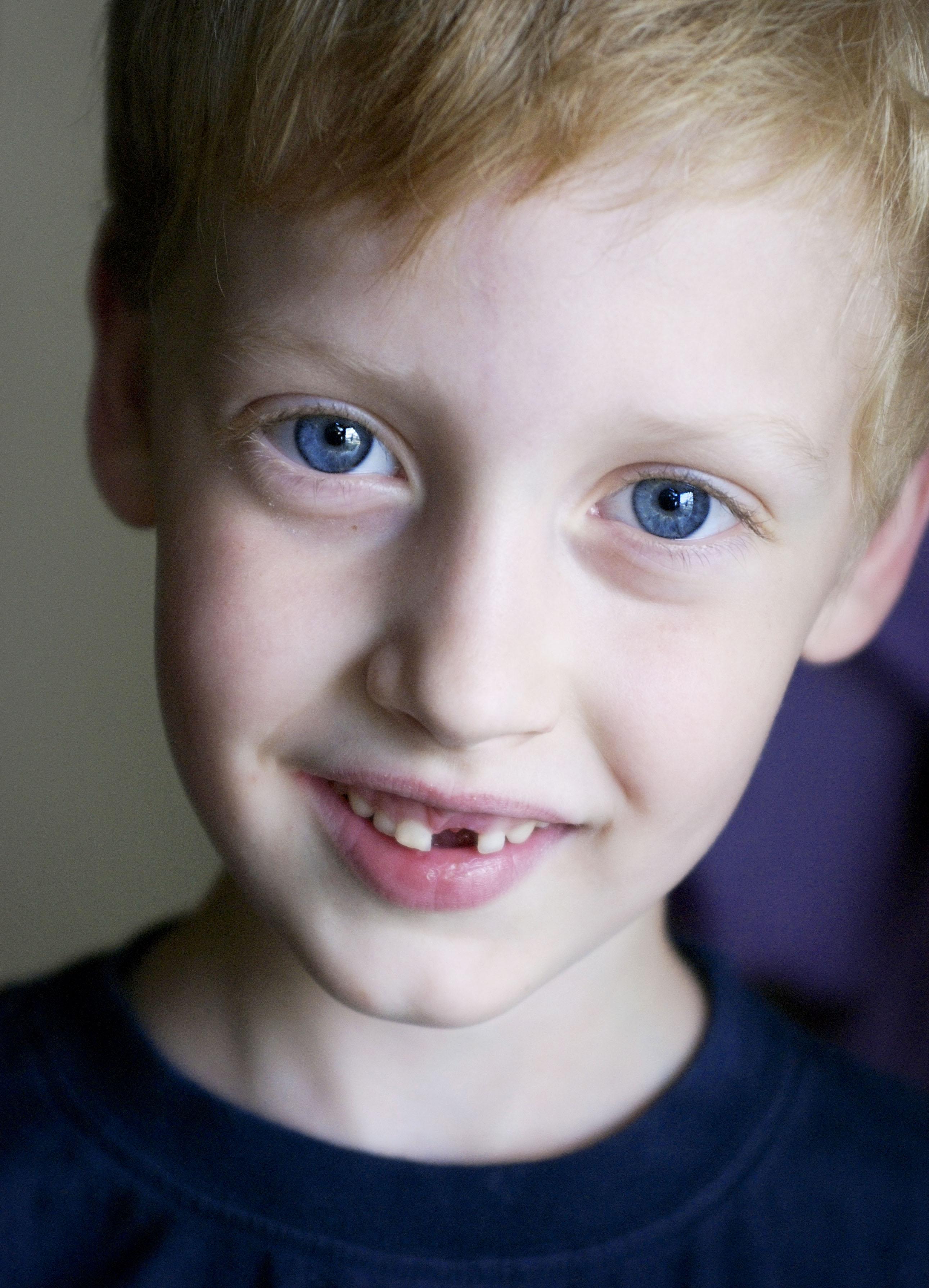 toothless B