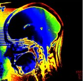 Radiograph of my head -  Do you find my brain?