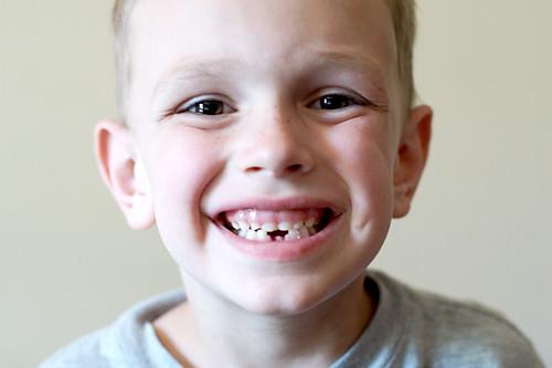 Kaelan's new smile!!