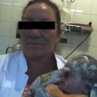 Nace un bebe con un solo ojo en San Vicente, Argentina. Con fotos (pueden herir su sensibilidad)